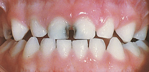 cavities in baby teeth