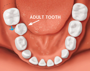 Teeth shifting in adults