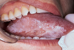 Which antibiotics are best for tooth infection cephalexin